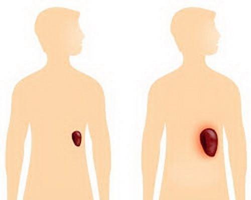 Lách thường to hơn khi cơ thể bị nhiễm trùng, ký sinh trùng.