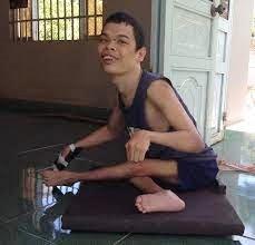 Nguyễn Minh Hào với ván trượt mới giúp anh di chuyển quanh nhà mà không phải bò như trước.