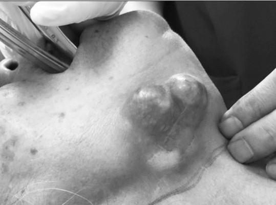 Khối ung thư tuyến nước bọt dưới hàm xâm lấn rất rộng.