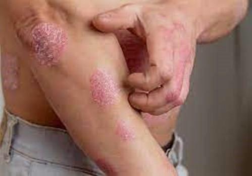 Bệnh vẩy nến gây ngứa, khó chịu cho người bệnh.