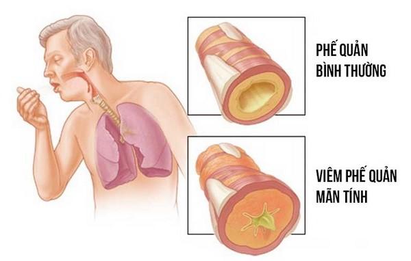 Ho là triệu chứng thường gặp trong bệnh viêm phế quản.