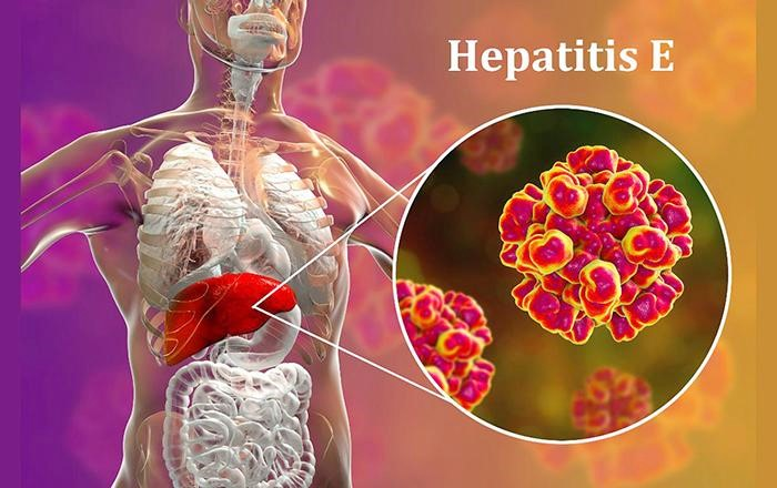 Viêm gan E nguy hiểm không kém các loại viêm gan virus khác như viêm gan B, C (Ảnh minh họa)